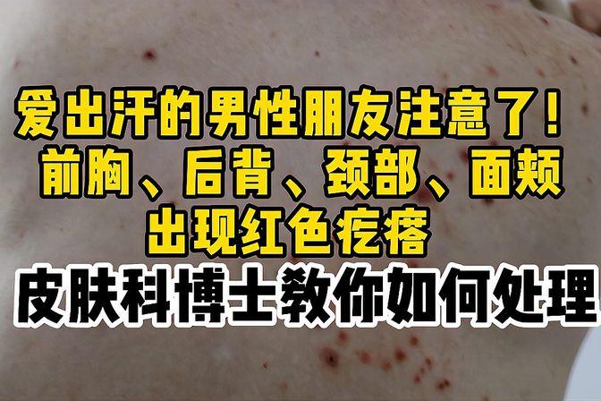 男性朋友们身上脸上长红色的小痘痘,该如何去处理?