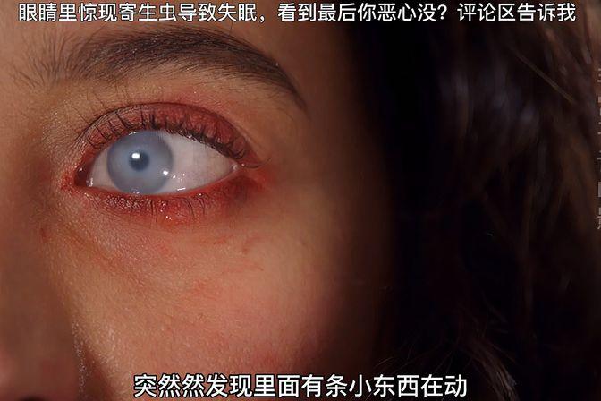 眼睛里惊现寄生虫,看到最后你恶心没?评论区告诉我