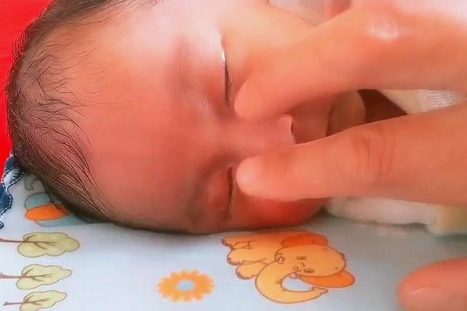 小宝宝泪管堵塞,趁他睡着了赶紧给他按摩按摩