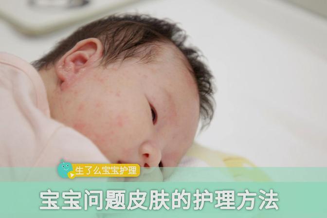 春季宝宝皮肤问题多,掌握护理常识远离皮肤疾病
