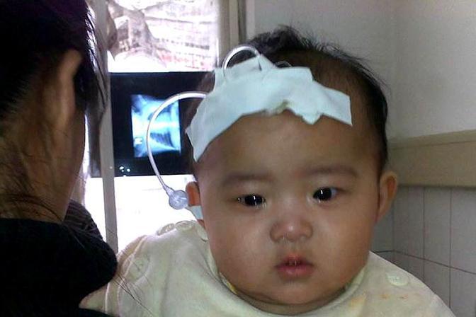 为什么给宝宝输液要在额头上扎针?很多人不知道,医生这样解释