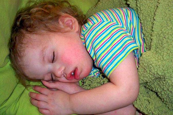 宝宝睡着后总是满头大汗,宝妈知道到底是什么原因吗?