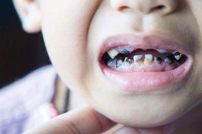小朋友小小年纪牙齿就坏掉了,这到底是怎么回事呢?要注意啦