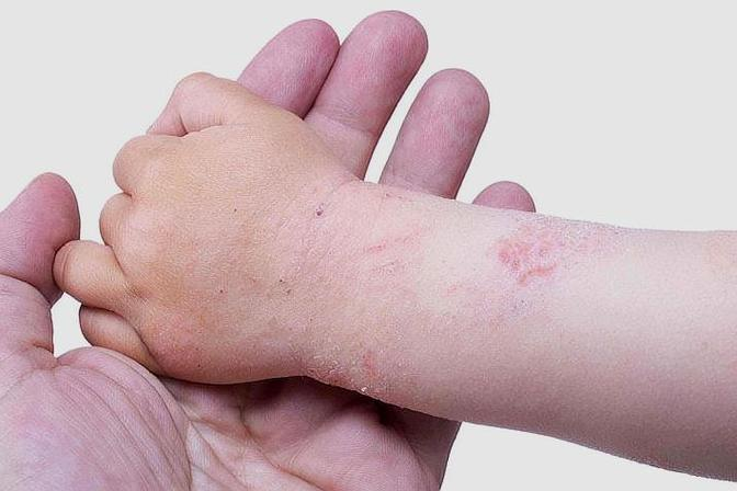 宝宝湿疹总是反复,到底要如何护理?这些护理事项新妈妈要收藏