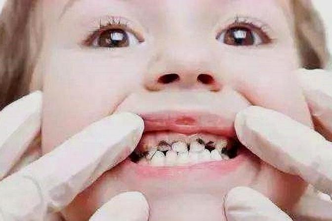 """宝宝""""满口烂牙"""",很多是父母这3种不当养育造成的,别全赖糖"""