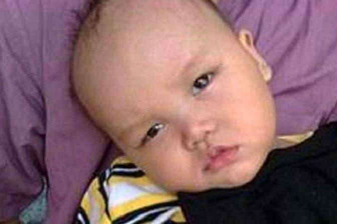 2岁宝宝不会爬,医院诊断重度脑瘫,这5个细节要注意了