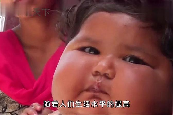 印度一女婴仅8个月,食量却是普通孩子的十倍,这可咋办啊!