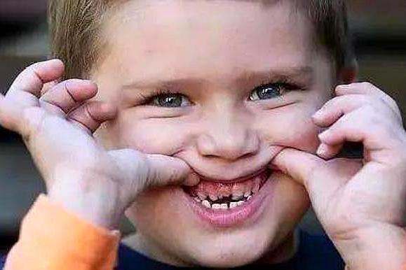 孩子从不吃糖却满嘴烂牙,原来是这些习惯造成的,家长别大意