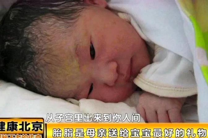 涨姿势!新生儿不宜天天洗澡!皮肤干易得特异性皮炎