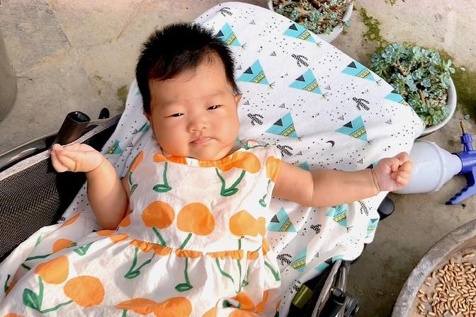 3个月的宝宝额头有白斑,表面光滑不痛不痒,这是怎么回事?
