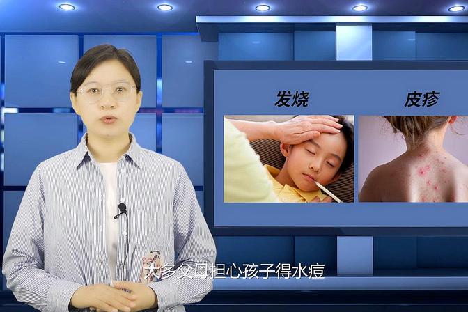 关于水痘疫苗,家长们关心的5个问题
