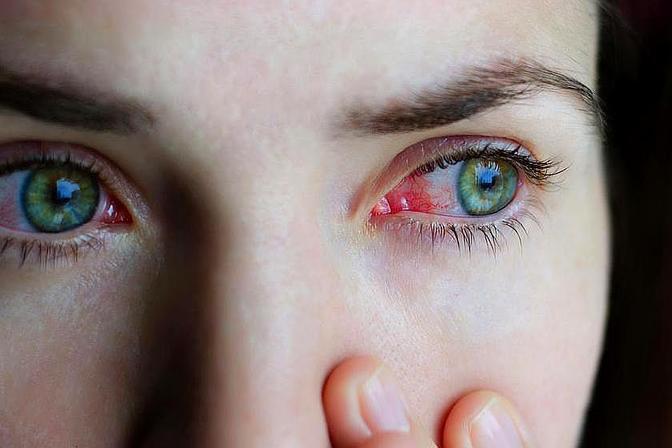 为什么每年夏天都会犯过敏性结膜炎?