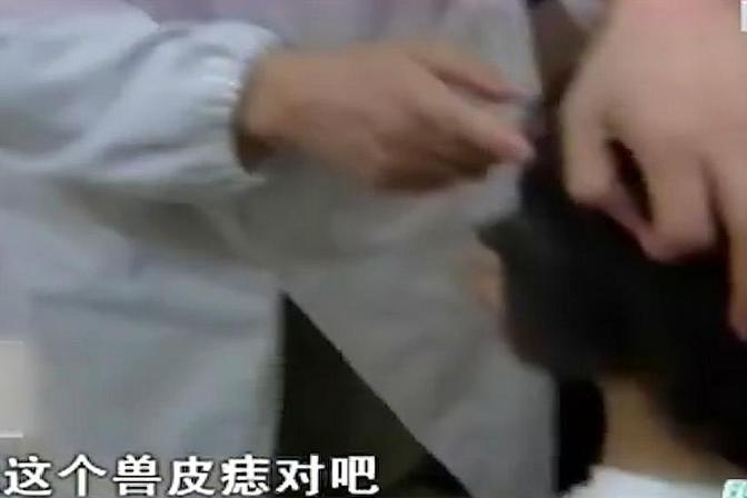 """女孩患上罕见""""兽皮痣"""",半张脸变得漆黑,医生检查完后背一凉"""