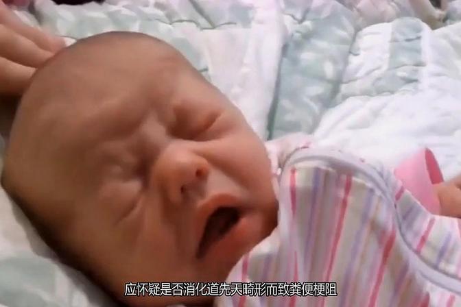 婴儿大便的次数?