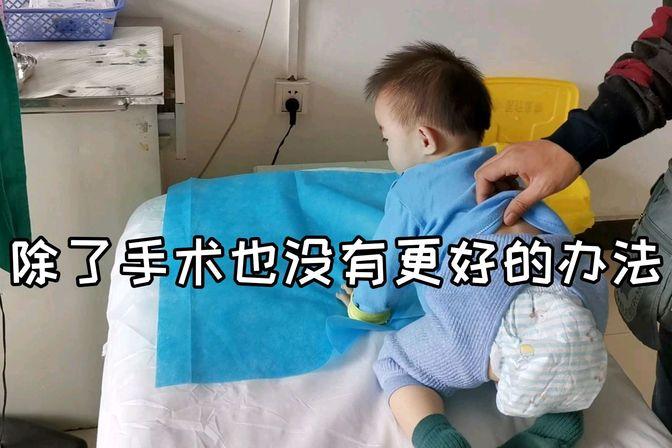 1岁宝宝眼睛有问题,每周都要带宝宝来看眼睛,心疼宝宝受罪