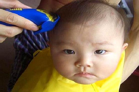 剃胎毛后孩子迟迟不长头发,带孩子去医院检查,医生怒斥:太无知