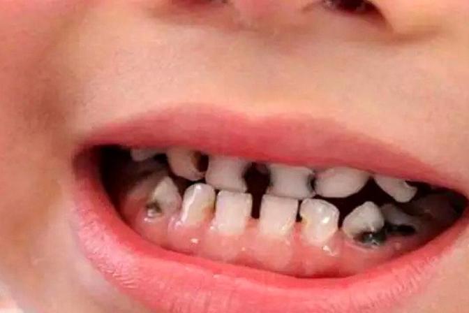 4岁孩子满嘴烂牙,牙医说和糖果无关,是家长这些坏习惯导致的