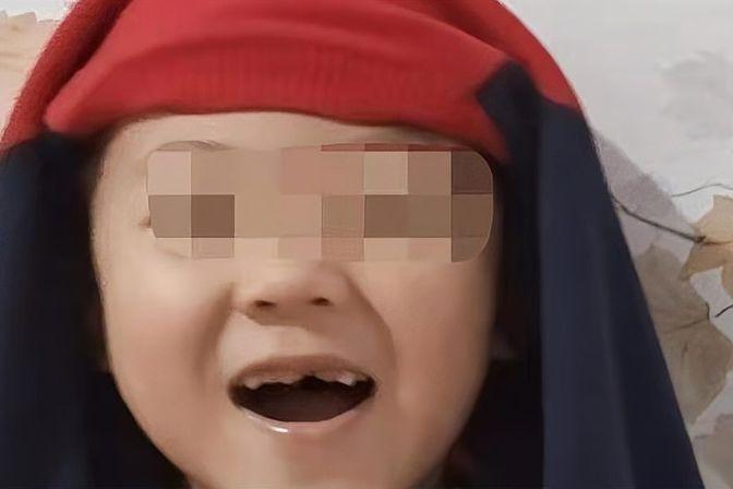 宝宝牙坏了,作为家长应该怎样去做?