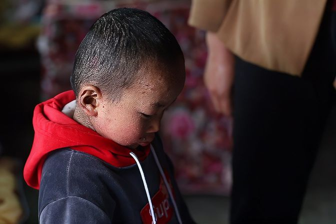 鱼鳞病儿童,可怜小小年纪受病痛的折磨,送几件衣服特别开心