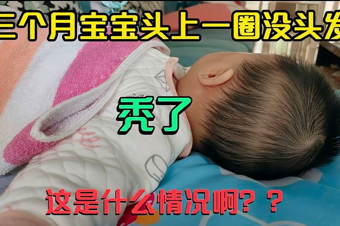 三个月宝宝头上一圈没有头发,吓坏海员爸爸,到底是什么情况?