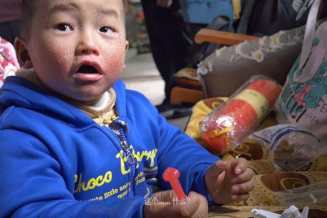 6岁男孩患罕见鱼鳞病,无法治疗每天竟然只能涂药膏缓解
