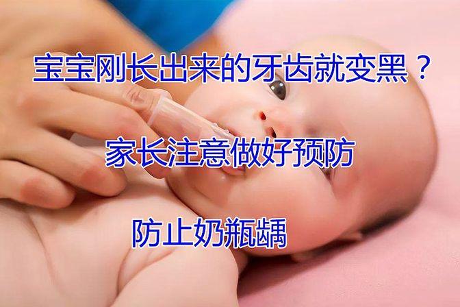 宝宝刚长出来的牙齿就变黑?家长注意做好预防,防止奶瓶龋