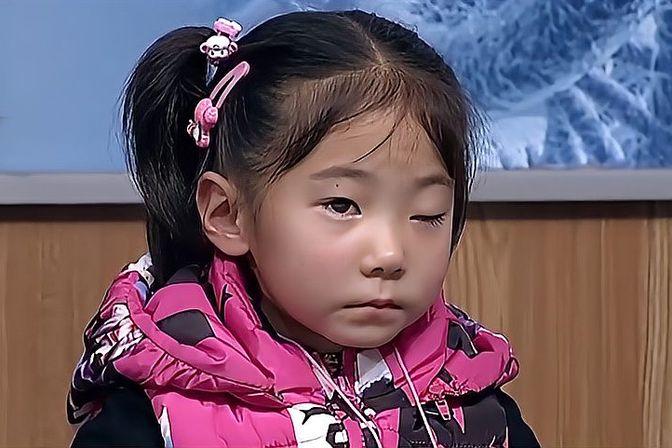 眼睑下垂的程度的分类,小女孩的各种表现,真是太可怜了