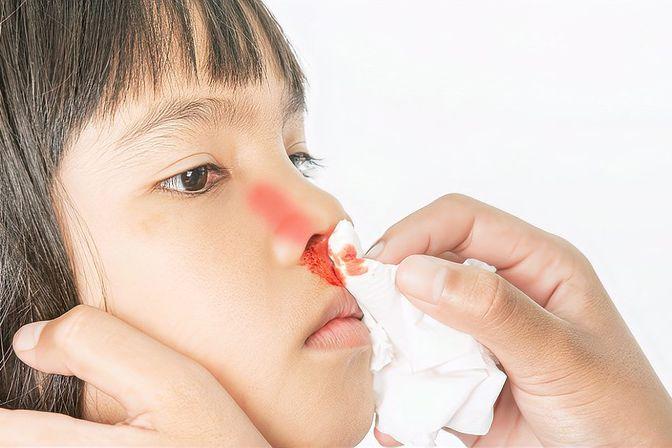 孩子老流鼻血是怎么回事?医生坦言:常见于这些原因所致