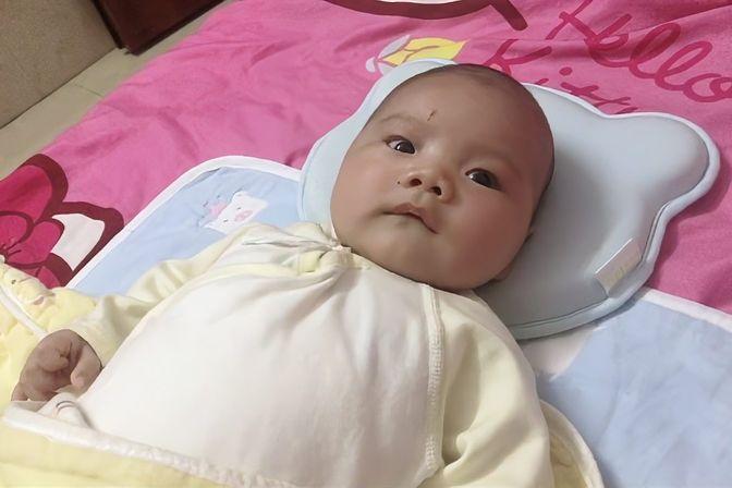宝宝鼻泪管堵塞经常流眼泪,眼睛有点红红的,滴了眼药水也没效果