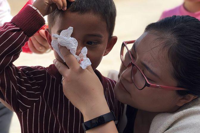 孩子经常流鼻血是怎么回事?把父母急坏了,竟是孩子坏习惯惹的祸