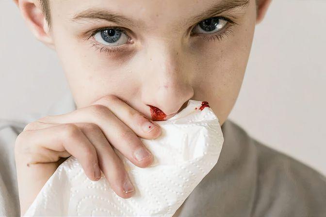 宝宝为什么会流鼻血?医生坦言:多是这4个原因导致