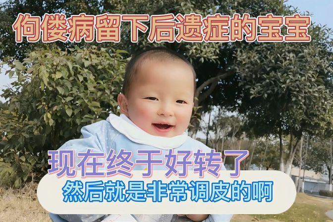佝偻病留下后遗症的宝宝鸡胸变小了,症状越来越轻了