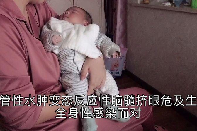 宝宝打疫苗后有哪些不良反应?这些都是妈妈必须知道的