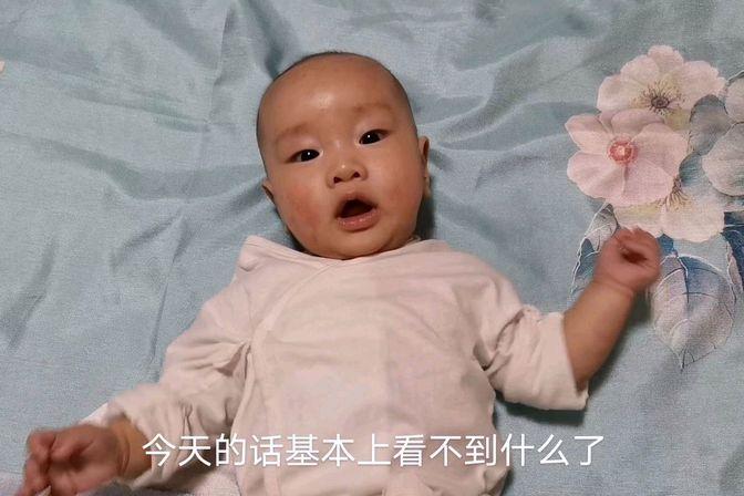 4个月宝宝湿疹好严重,擦了医生开的这款药,湿疹立马消失了