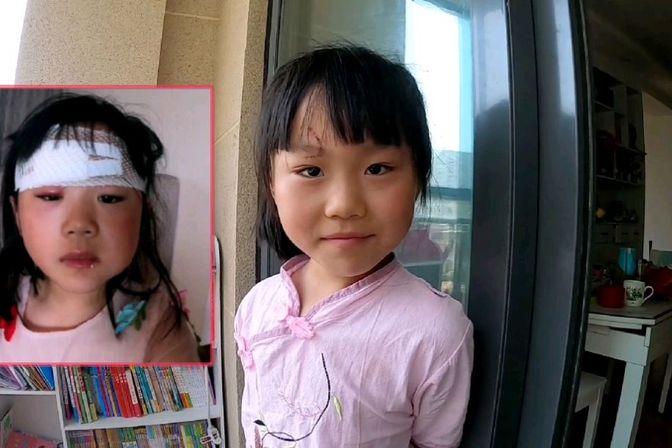 女儿因为学习额头缝了13针,听从网友的建议,买了最好的祛疤膏